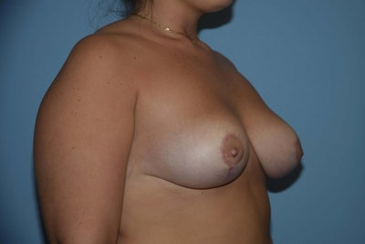 Breast Reduction Gallery - Patient 9568255 - Image 4