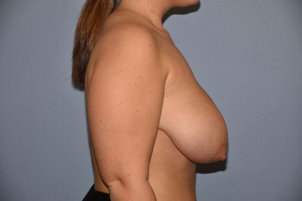 Breast Reduction Gallery - Patient 9568255 - Image 5