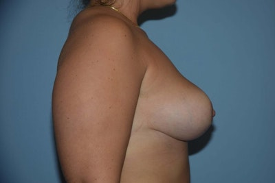 Breast Reduction Gallery - Patient 9568255 - Image 6