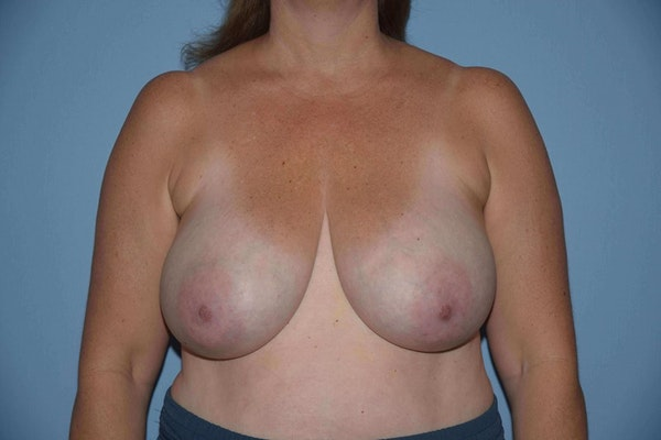 Breast Reduction Gallery - Patient 9568275 - Image 1
