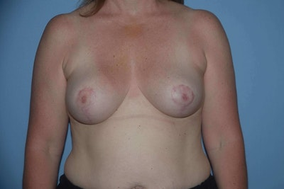 Breast Reduction Gallery - Patient 9568275 - Image 2