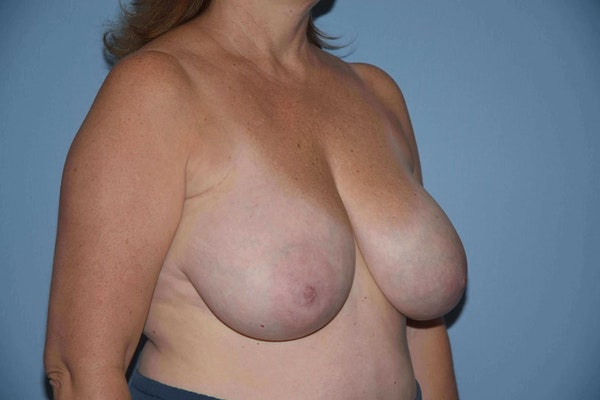 Breast Reduction Gallery - Patient 9568275 - Image 3