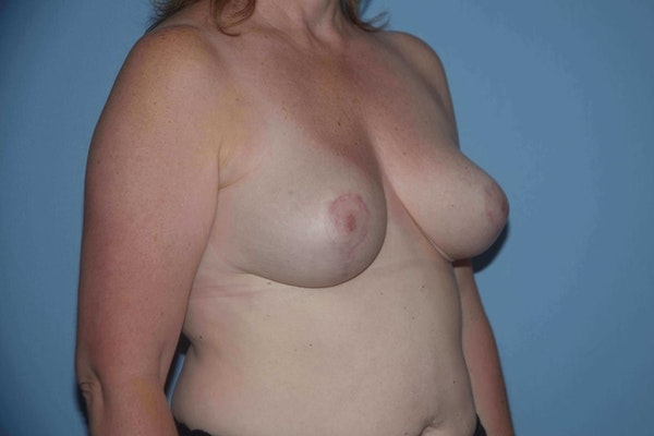 Breast Reduction Gallery - Patient 9568275 - Image 4