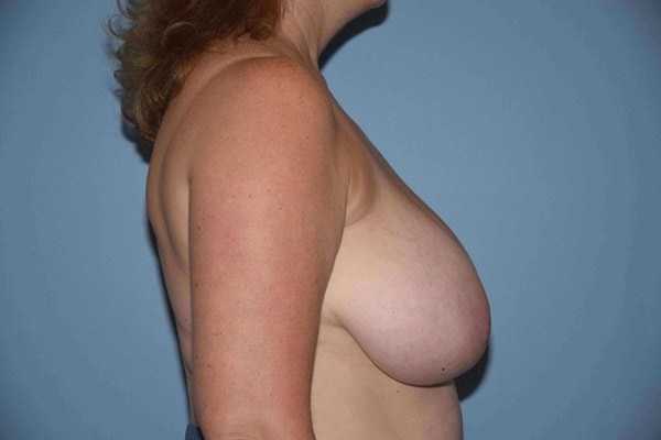 Breast Reduction Gallery - Patient 9568275 - Image 5