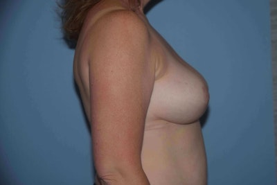 Breast Reduction Gallery - Patient 9568275 - Image 6