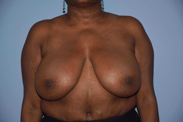 Breast Reduction Gallery - Patient 9568279 - Image 1