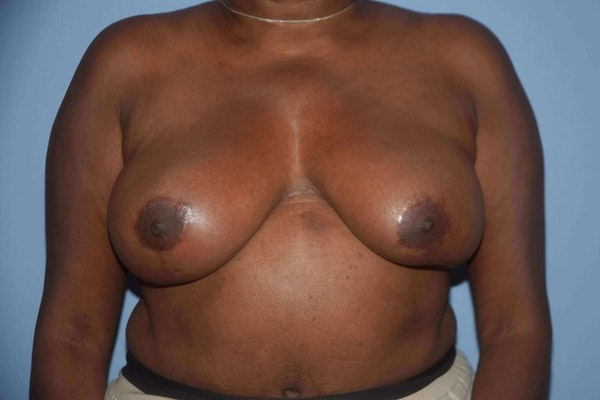 Breast Reduction Gallery - Patient 9568279 - Image 2