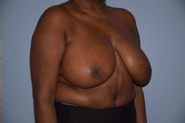 Breast Reduction Gallery - Patient 9568279 - Image 3