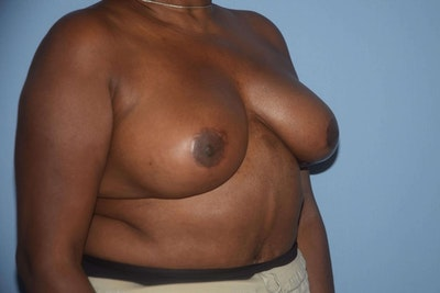 Breast Reduction Gallery - Patient 9568279 - Image 4