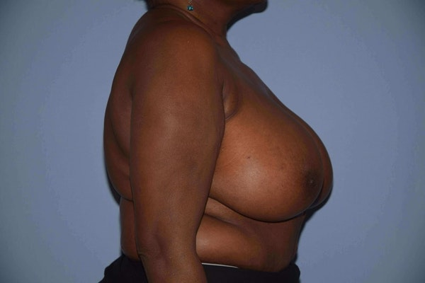 Breast Reduction Gallery - Patient 9568279 - Image 5