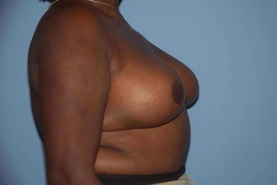 Breast Reduction Gallery - Patient 9568279 - Image 6