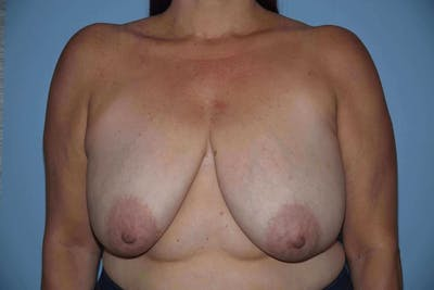 Breast Reduction Gallery - Patient 9568281 - Image 39