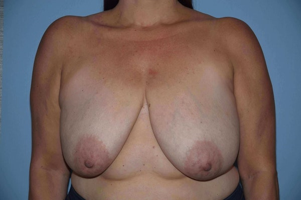 Breast Reduction Gallery - Patient 9568281 - Image 1