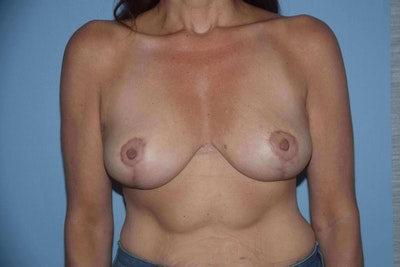 Breast Reduction Gallery - Patient 9568281 - Image 2