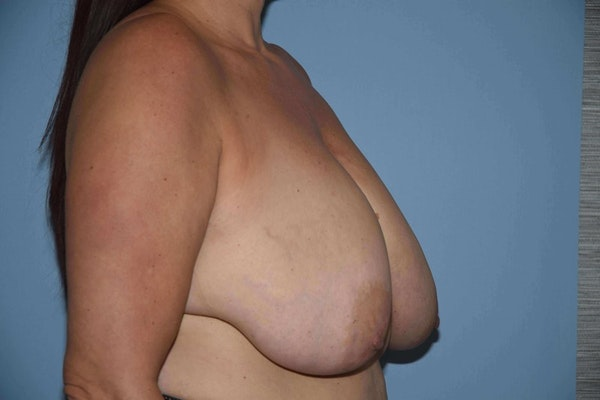 Breast Reduction Gallery - Patient 9568281 - Image 3