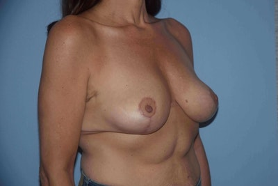 Breast Reduction Gallery - Patient 9568281 - Image 4