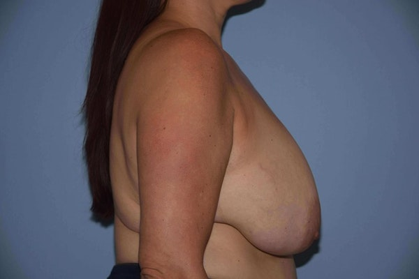 Breast Reduction Gallery - Patient 9568281 - Image 5