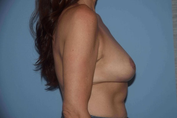 Breast Reduction Gallery - Patient 9568281 - Image 6