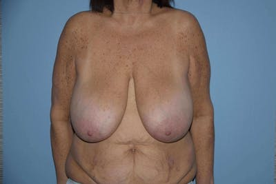 Breast Reduction Gallery - Patient 9568294 - Image 40