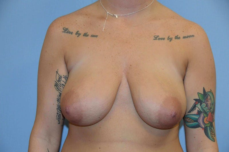 Breast Reduction Gallery - Patient 14281647 - Image 1