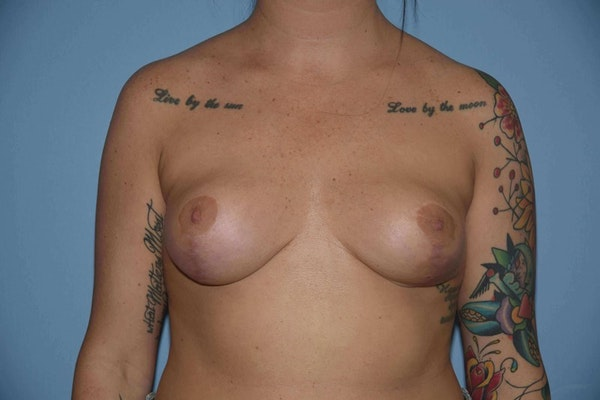 Breast Reduction Gallery - Patient 9568298 - Image 2