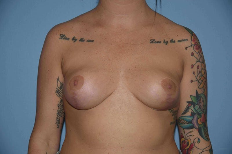 Breast Reduction Gallery - Patient 14281647 - Image 2
