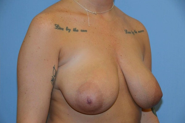Breast Reduction Gallery - Patient 9568298 - Image 3