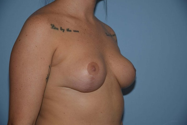 Breast Reduction Gallery - Patient 9568298 - Image 4