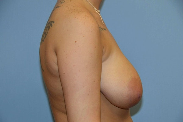 Breast Reduction Gallery - Patient 9568298 - Image 5