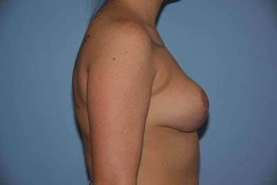 Breast Reduction Gallery - Patient 9568298 - Image 6