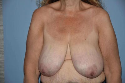 Breast Reduction Gallery - Patient 9568303 - Image 42