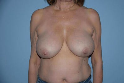 Breast Reduction Gallery - Patient 9568306 - Image 43
