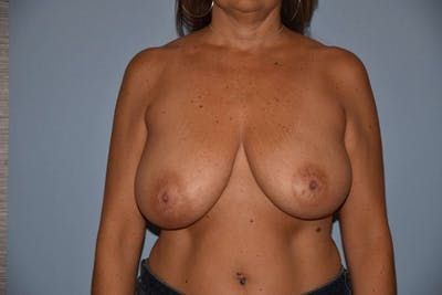 Breast Reduction Gallery - Patient 9568310 - Image 44