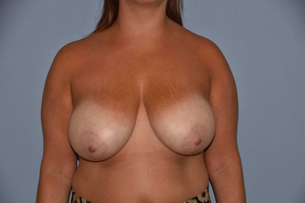 Breast Reduction Gallery - Patient 9568313 - Image 1