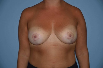 Breast Reduction Gallery - Patient 9568313 - Image 2
