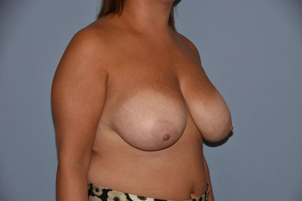 Breast Reduction Gallery - Patient 9568313 - Image 3
