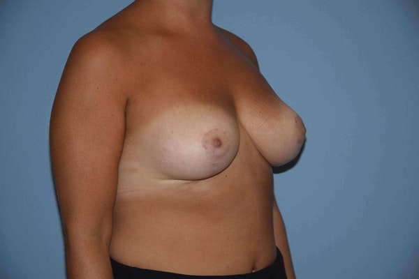 Breast Reduction Gallery - Patient 9568313 - Image 4
