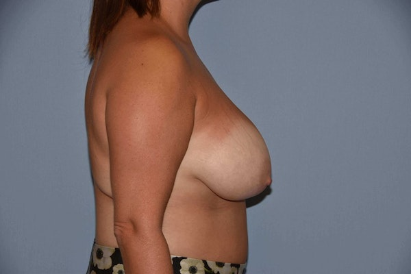Breast Reduction Gallery - Patient 9568313 - Image 5