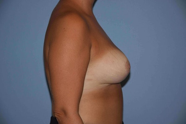 Breast Reduction Gallery - Patient 9568313 - Image 6