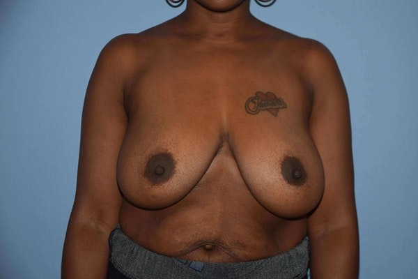 Breast Reduction Gallery - Patient 9568317 - Image 1