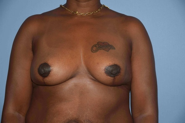 Breast Reduction Gallery - Patient 9568317 - Image 2