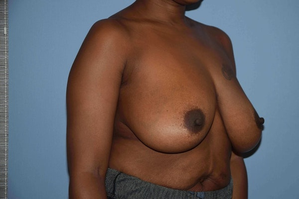 Breast Reduction Gallery - Patient 9568317 - Image 3