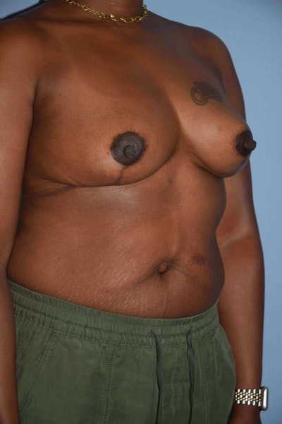 Breast Reduction Gallery - Patient 9568317 - Image 4