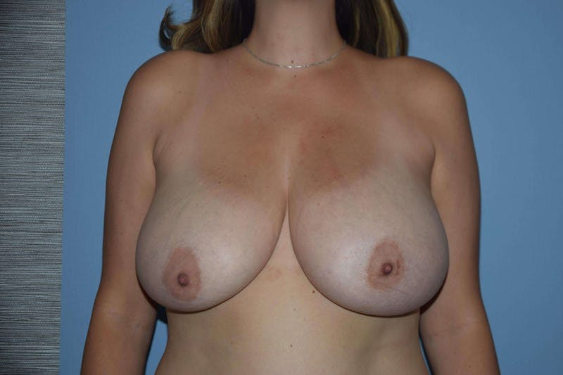 Breast Reduction Gallery - Patient 14281653 - Image 1