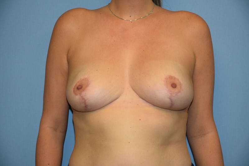 Breast Reduction Gallery - Patient 14281653 - Image 2
