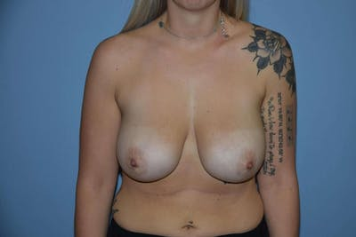 Breast Reduction Gallery - Patient 9568326 - Image 48