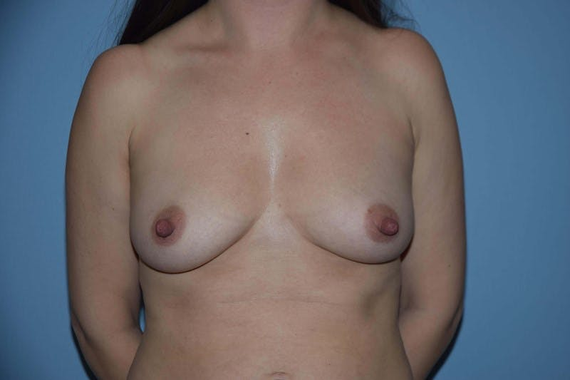 Breast Augmentation Gallery - Patient 14281575 - Image 1