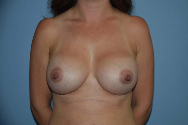 Breast Augmentation Gallery - Patient 14281575 - Image 2