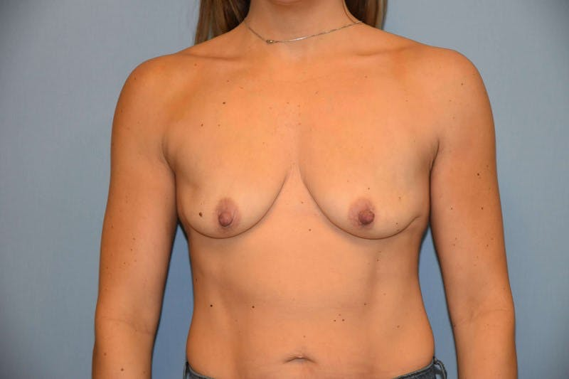 Breast Augmentation Gallery - Patient 14281589 - Image 1