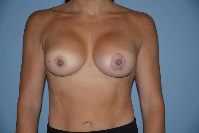 Breast Augmentation Gallery - Patient 14281589 - Image 2
